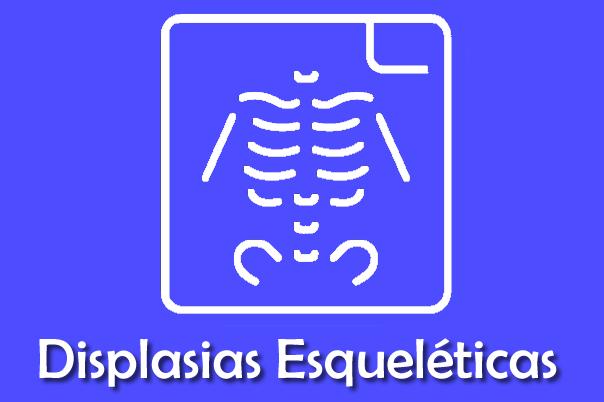 Displasia Esqueléticas